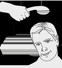 DAS Gel von Dermabene®anwendung-Anti-schuppen-gel-3