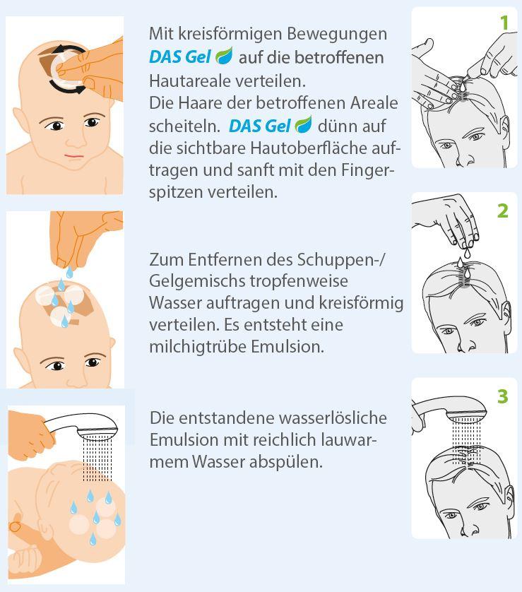 Dermabene® - DAS Antischuppen Gel-anwendung